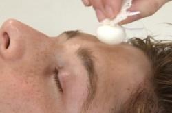 Cebolla contra el acné